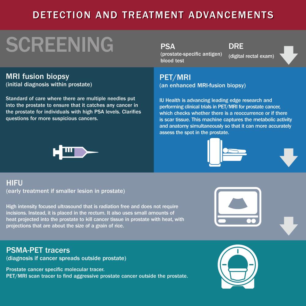 Prostate Cancer Detection & Treatment Advancements