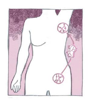 Lymph node transfers
