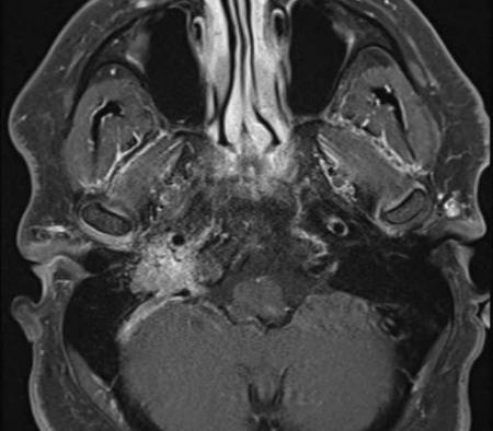 Glmous Tumor